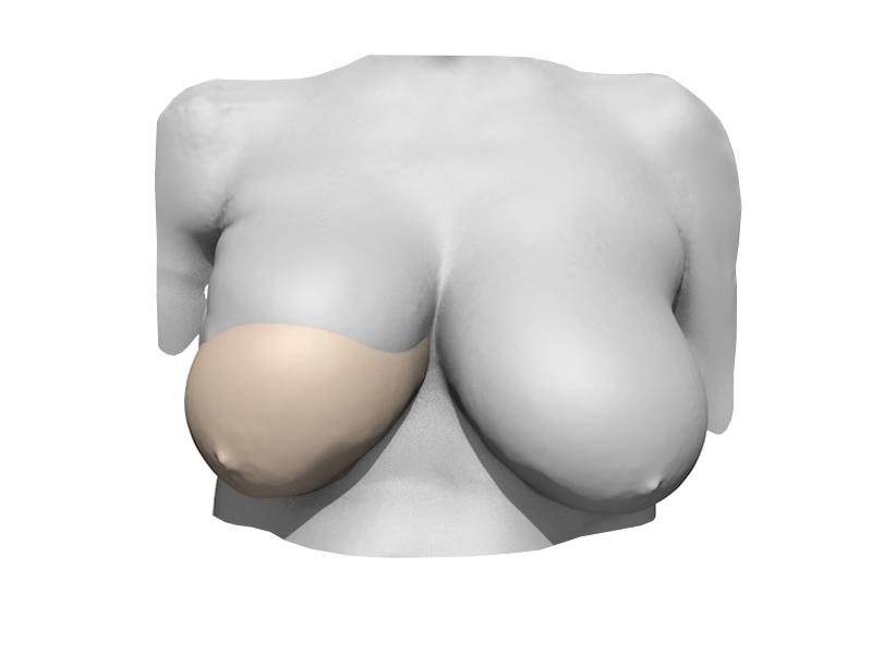 bk-protheses-maak-haarlem